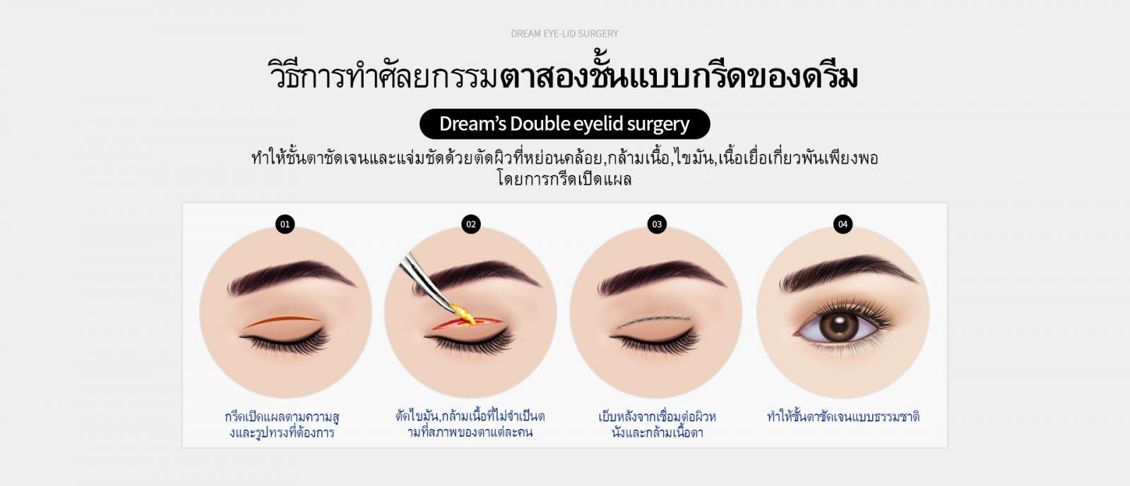 eye01_0101