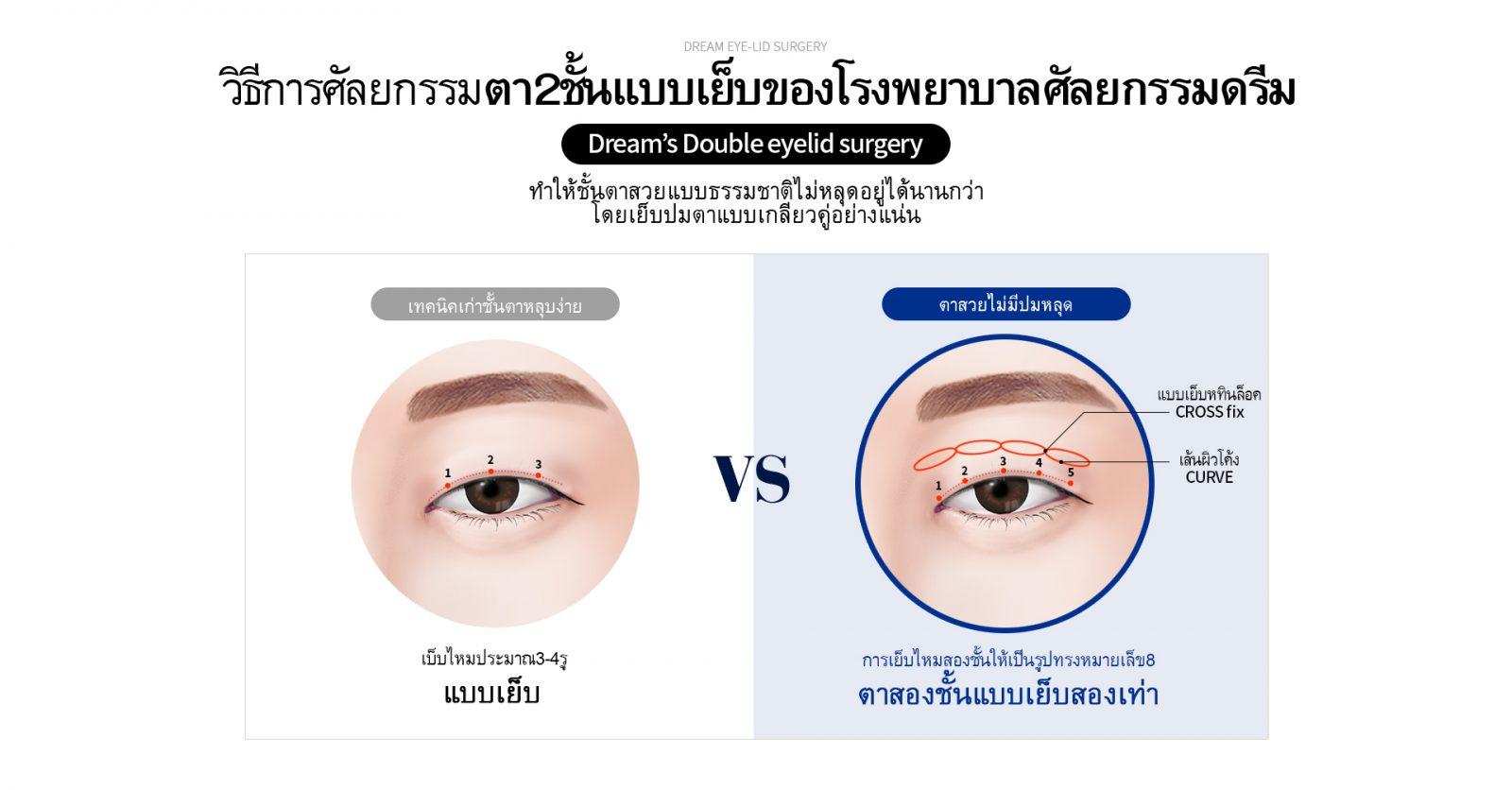 eye01_0101_2